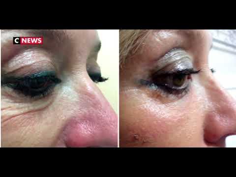 Les crèmes cosmétiques pour la sortie de la peau autour des yeux de la série oblepikha les rappels