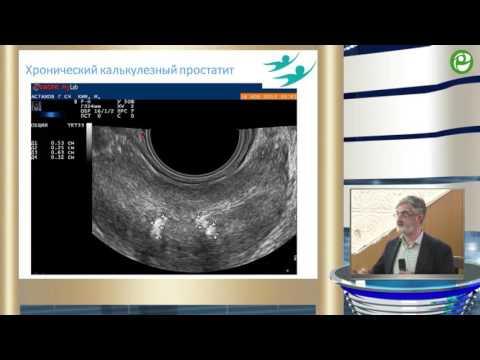 Рак предстательной железы биохимический рецидив
