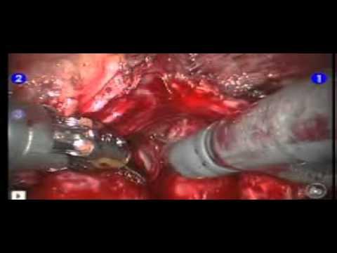Соли в предстательной железе лечение