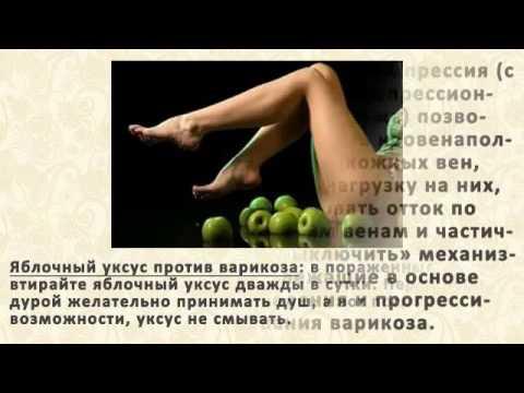 Чудо Мазь От Варикоза Старинный Народный Рецепт [Чудо Мазь От Варикоза]
