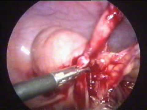 Laparoscopic appendicectomy for mucocele appendix