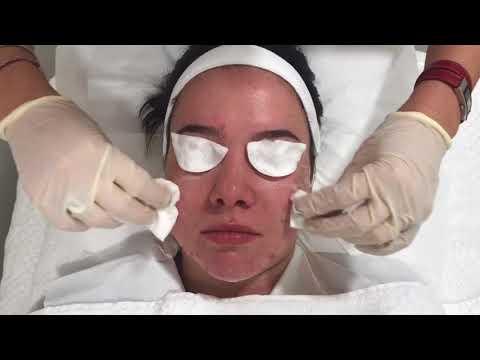 Le masque avec dimeksidom pour la personne avec solkoserilom et dimeksidom les rappels le forum