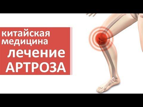 Как вылечить артроз коленного сустава. ❔ Об артрозе коленного сустава и способах его лечения.