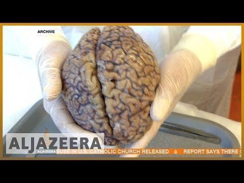 🇦🇺 Sydney 'Brain Bank' studies athletes' head trauma | Al Jazeera English