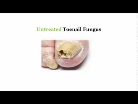 Fungus toenails orungal