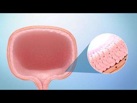 Simptomele de detoxifiere a irigării colonice