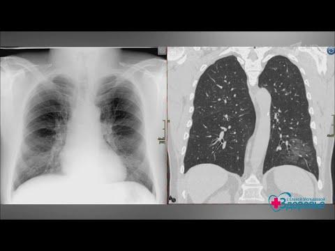 Dureri la nivelul rinichilor