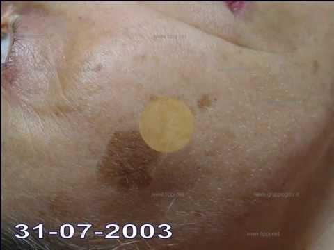 Posto di pigmentary posttraumatico