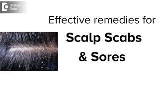 Scabs & Sores on Scalp: Treatment, Causes & Remedies - Dr. Aruna Prasad