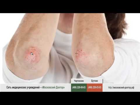 Отзывы отбеливающий крем miracle glow с китайским кордицепсом