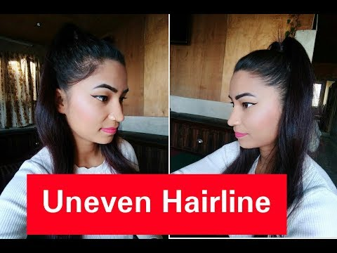Perfect High Ponytail / How To Cover Uneven Hairline