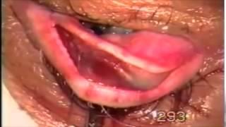 Surgery for Entropion-trichiasis, using Fugo blade