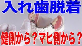 片マヒの人の入れ歯脱着のポイント