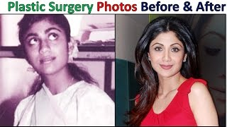 Top Plastic Surgery Photos Of Popular Bollywood Actresses - Before & After