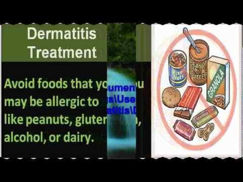 Dermatite di atopic a bambini di 2 anni