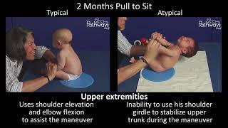 2 Month Old Baby Typical & Atypical Development Side by Side