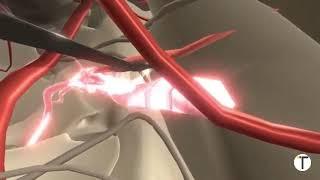 Video التهاب العصب الثالث