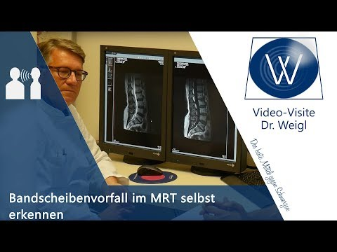 9 mm Herniation in der Halswirbelsäule