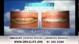 Lumineers 2 en Madrid España . Smilelife Centro Certificado Lumineers