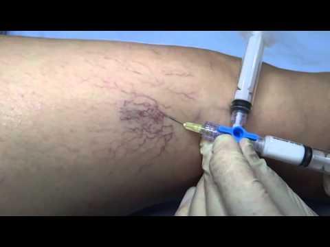 Esclerosis de varices con espuma