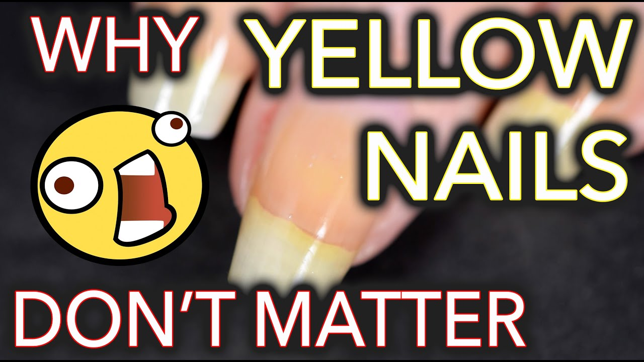 Why yellow nails DON'T MATTER / Don't whiten your nails thumbnail