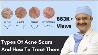 Types Of Acne Scars And How To Treat Them   ClearSkin, Pune   (In HINDI)