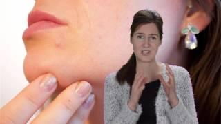 Akne Pickel – Ernährung – Ursache – Entzündungen