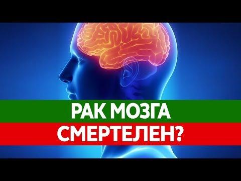Как РАК МОЗГА может убить тебя? Глиобластома - злокачественная опухоль головного мозга