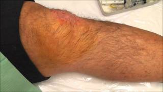 preview picture of video 'Educational video of Intra-articular injection of Hyaluronic acid in a knee joint'