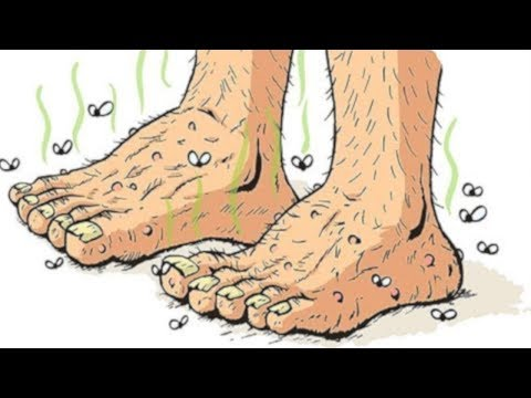 Płasko-koślawe Wkładki deformacja stóp