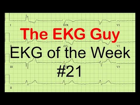 EKG of the Week #21