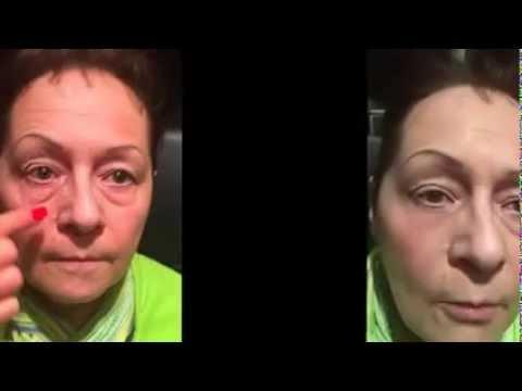 Чем лечить синяки и мешки под глазами