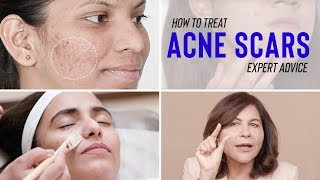 Treatments for ACNE SCARS   Dr. Bindu's Expert Advice