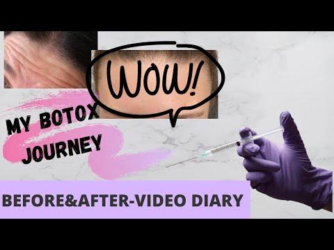 Videó hogyan lehet gyógyítani a visszér
