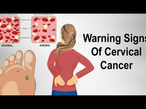 Ovarian cancer johnson and johnson lawsuit