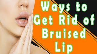 How to Get Rid of a Bruised Lip | Ways to Get Rid of a Bruised Lip (Swollen Lips)
