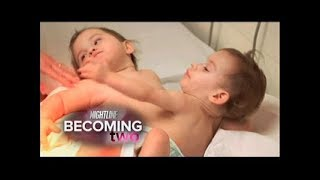 Conjoined Twins, Erika & Eva Sandoval Successfully Separated