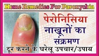 Paronychia Home Remedies पेरोनिसिया नाखूनों का संक्रमण दूर करें के घरेलु उपाय