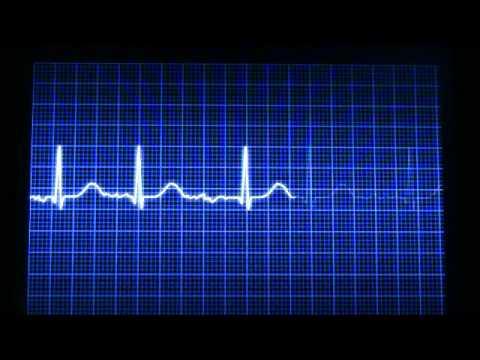 Pressione sanguigna in stenosi mitralica