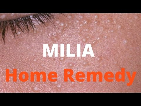 Video Milia treatment