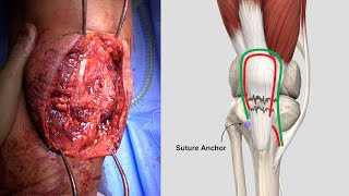 Chronic Patellar Tendon Rupture Reconstruction with Hamstring Autograft