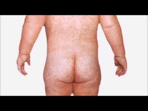 Pourquoi apparaît le psoriasis les raisons psychosomatiques
