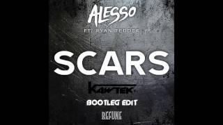 Alesso - Scars Of Life (Kawtek Bootleg Edit)