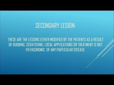 Papillomatosis lung ct