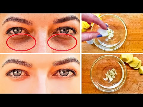 How to Get Rid of Dark Circles Under the Eyes in 3 Days