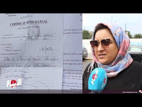 العرب اليوم - شاهد : شاب يشوه وجه فتاة عشرينية من دون رحمة