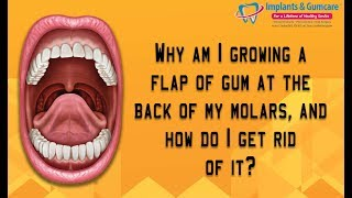 A flap of gum growing at the back of my molars- How do i get rid of it? Carrollton Surgeon Vadivel
