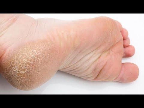 Сильнейший рецепт от глубоких трещин на ногах. ПРОВЕРЕНО РАБОТАЕТ!