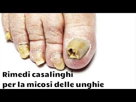 Faccia una pedicure in salone sopportando un fungo