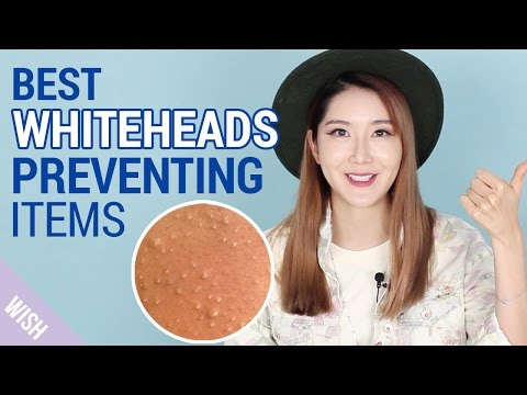 Video What causes Whiteheads?   How to prevent Whiteheads   Wishtrend